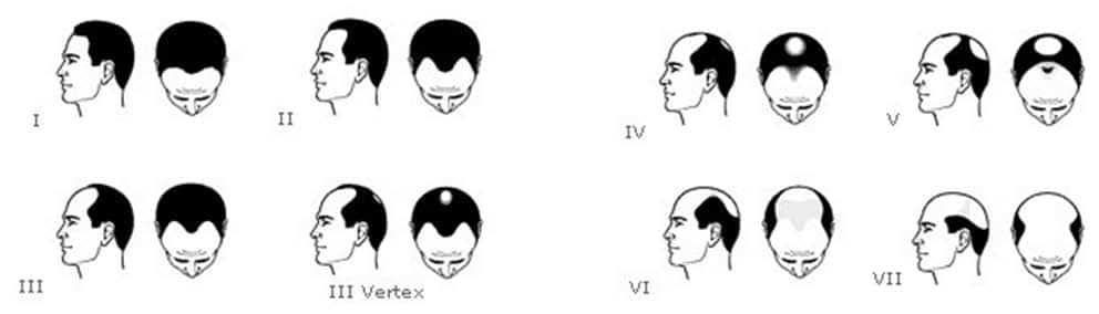 schema of man hair loss and fall