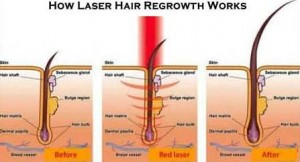 schema treatment hair loss by laser