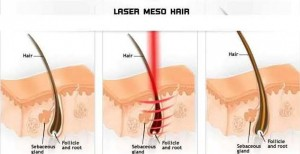 schema treatment hair loss medical treatment