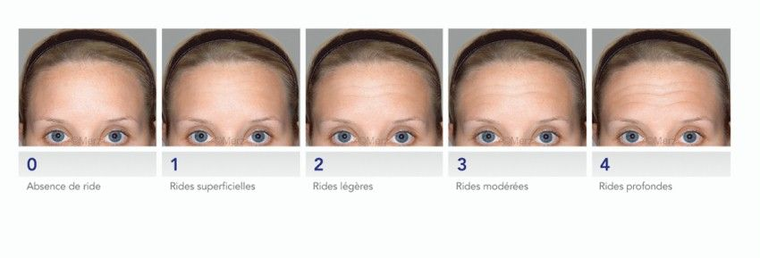 photo types of forehead wrinkles