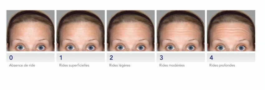 photo garvity and stages of forehead wrinkles