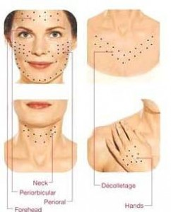 image mesotherapie visage, cou, decollete et mains a paris