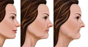 Natural evolution of the face with ageing