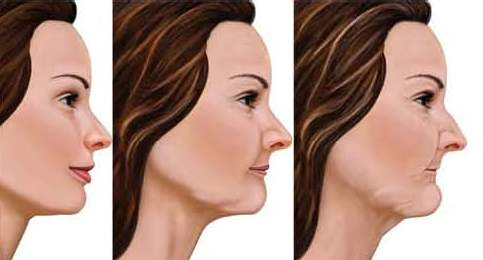 Ageing Is Responsible For Several Changes Which Occur To The Lower Third Of  The Face : U2013 The Loss Of Definition To The Facial Oval And The Appearance  Of ...