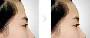 photo cosmetic treatment to change the shape of forehead