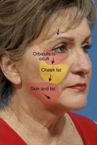 schema fat facial fall