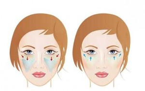 picture treatment of cheekbone by hyaluronic acid i