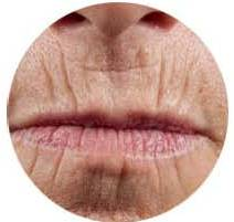 photo lips vertical wrinkles