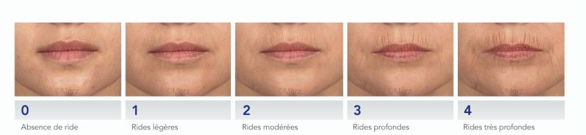 gravity and stage of smoker lines and lips wrinkles
