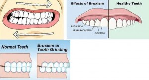 Image consequence of teeth grinding at night