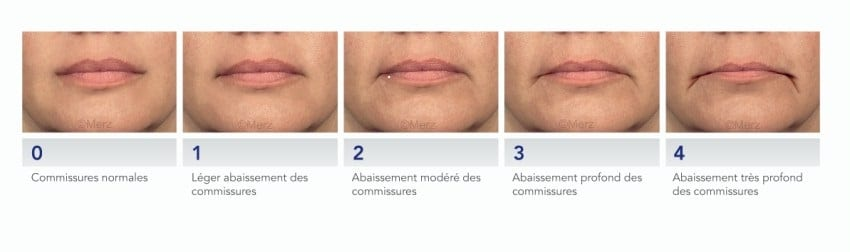 photo evolution et solution plis d amertume medecine esthetique