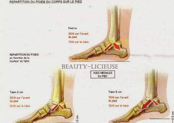 mage injection hyluronic acid in the sole of the foot to reduce the pain due to the heels in paris