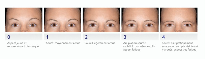 picture stages of ageing of eyebrow