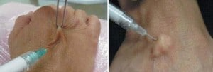 image hyaluronic acid injection of hands by needle