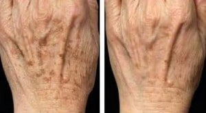 image ipl treatment of the hands
