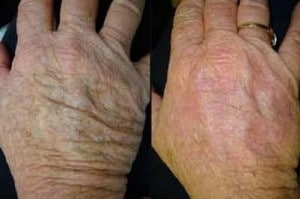 image mesotherapy treatment of the hands
