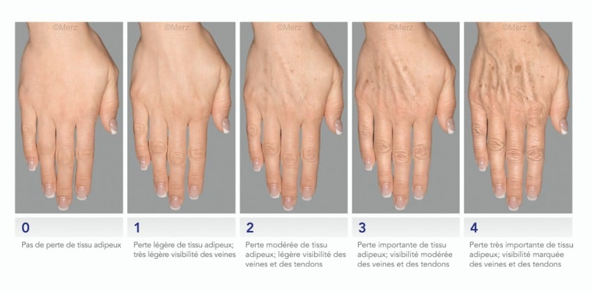 image stages fof gravity of hands aging