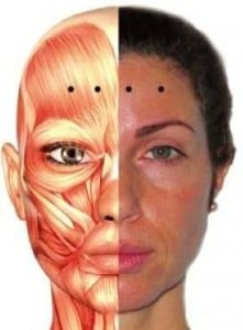 picture botox point for forehead wrinkles