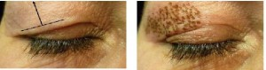 picture reduction of excess skin of the upper eyelid