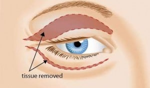 cosmetic surgery of eyelids