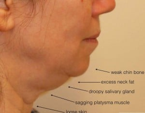 example fat excess in the double chin