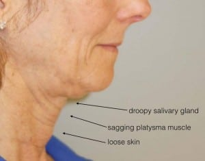 exemple sagging skin in double chin