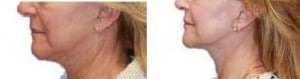 image laser and ulthera for double chin