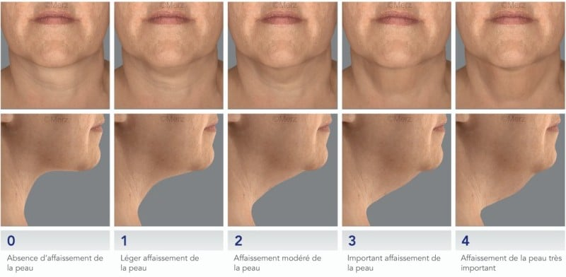 Scale of the neck skin sag