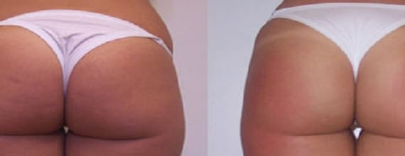 photo amelioration cellulite avec la cavitation