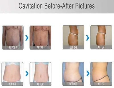 Photo indications cavitation