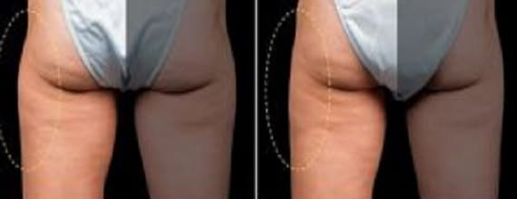 photo resultat cryolipolyse cuisses