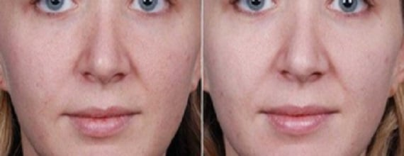 photo amelioration peau avec peeling superficiel