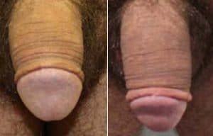 before after photos penile remodelling