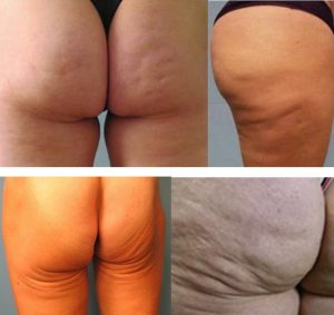 picture of sagging skin on the buttock cosmetic in paris