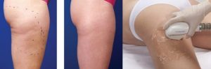 picture radiofrequency treatment for sagging skin of the body paris