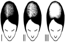 ALOPECIE FEMME CLASSIFICATION