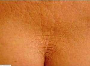 image slackening skin on the decolletage