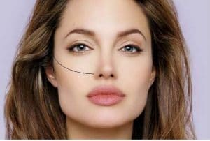 picture female cheekbones cosmetic paris
