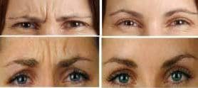 photo cosmetic treatment of frown lines in paris
