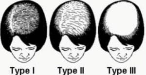 schema of woman hair loss and fall