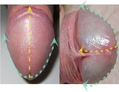 Photo injection acide hyaluronique gland