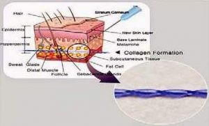 image hyaluronic acid and threads for body rejuvenation