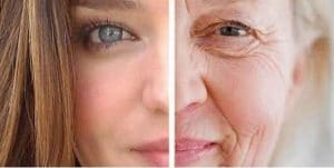 photo remove wrinkles in paris and cosmetic medecine