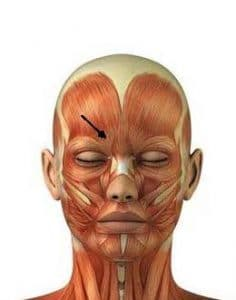 picture point of botox for frown lines