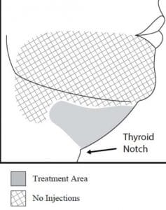 Schema treatment area kybella double chin