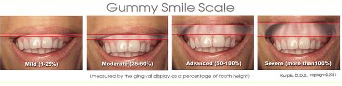 photo gravity and scale of gummy smile