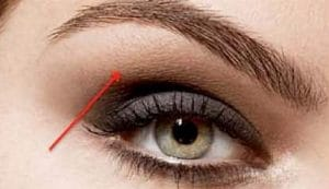 sourcils injection lifting
