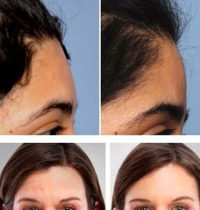 photo improve the profil of the forehead with hayluronic acid and botox cosmetic medecine paris
