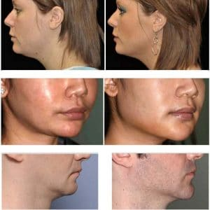 photo improve the profil of jawline with hayluronic acid and botox cosmetic medecine paris
