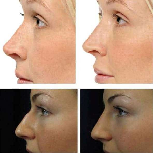photo improve the profil of the nose with hayluronic acid and botox cosmetic medecine paris